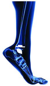1. lateral foot with implant