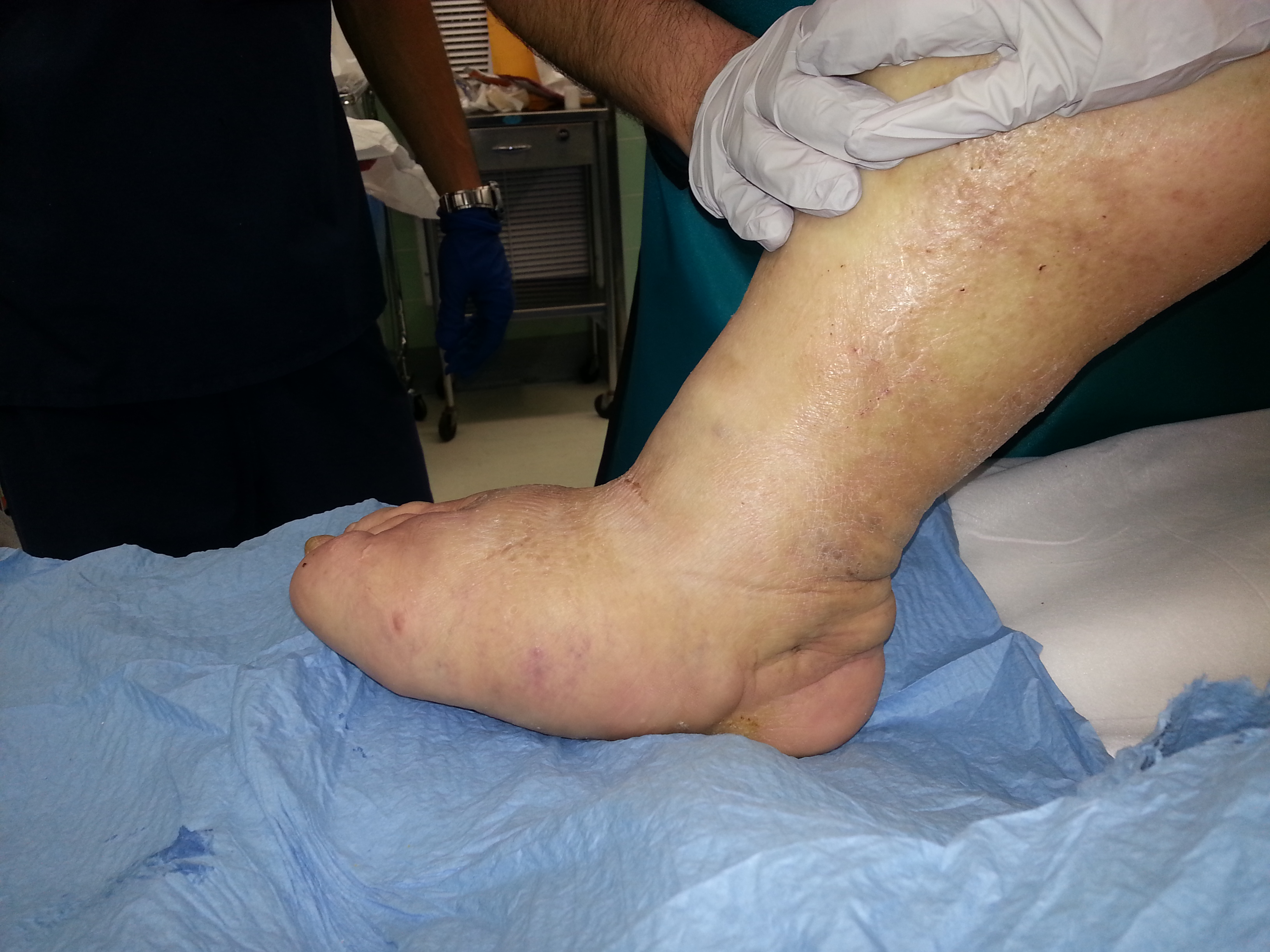 Charcot Foot Reconstruction 1 - Foot Doctor San Diego
