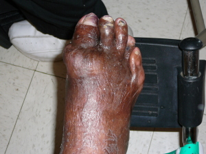 Foot pain from gout