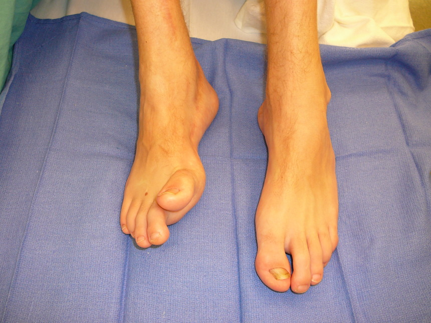 congenital brachymetatarsia Brachymetatarsia or hypoplastic metatarsal is a condition in which there is one or more abnormally short or overlapping toes metatarsals this condition may result due to a congenital defect or it may be an acquired condition.